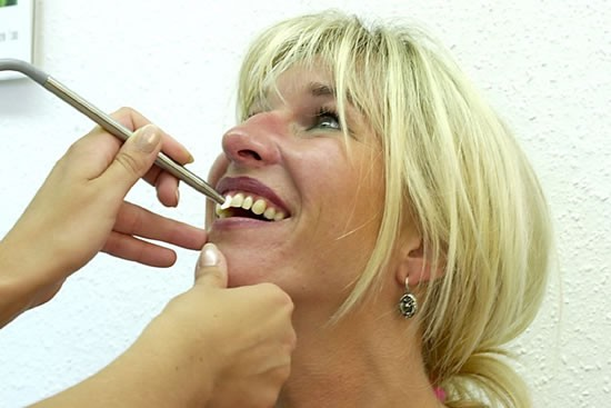 Digitale Zahnfarbenauswahl
